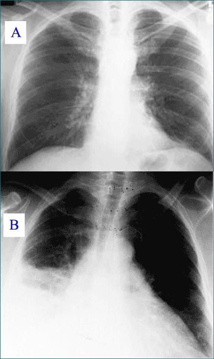 zapalenie płuc - prześwietlenie