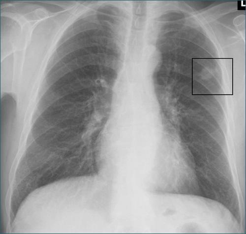 Guzek na płucach