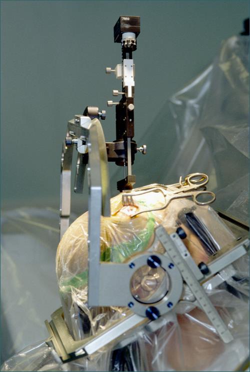 Choroba Parkinsona - zabieg założenia elektrody